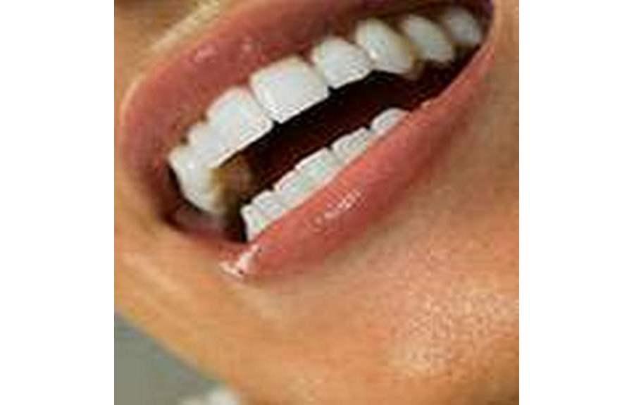 Красивые и белые зубы — секрет вашей привлекательности