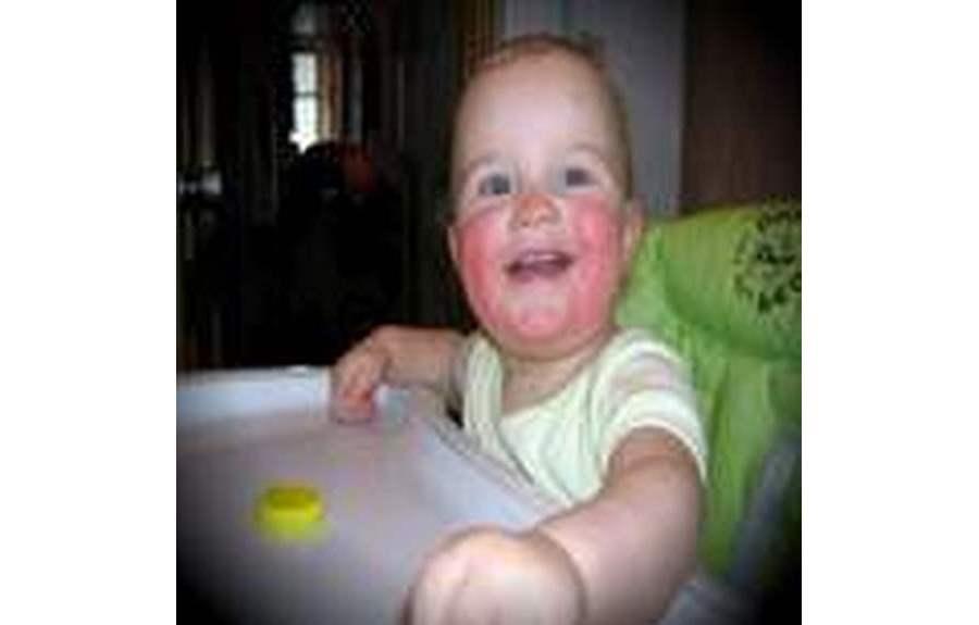 Пищевая аллергия у детей. Причины, симптомы, лечение