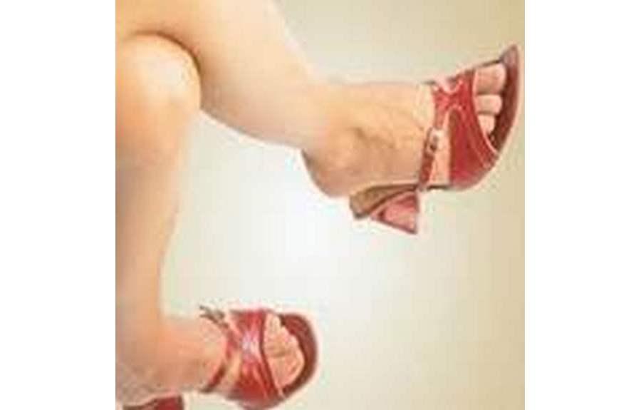 Причины появления варикоза