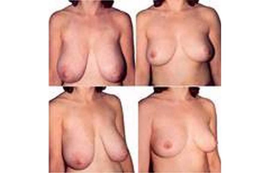 Уменьшение груди: принципы и особенности