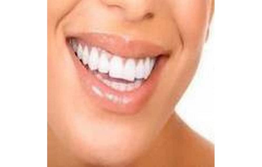 Как отбелить зубы народными средствами? Собрание советов