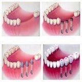 Основные достоинства базальной имплантации зубов