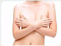 Что такое маммопластика и какие у нее преимущества