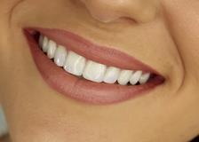Здоровье зубов, правильный уход